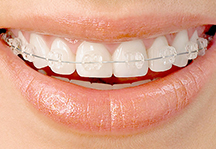 Photo of clear fixed braces.