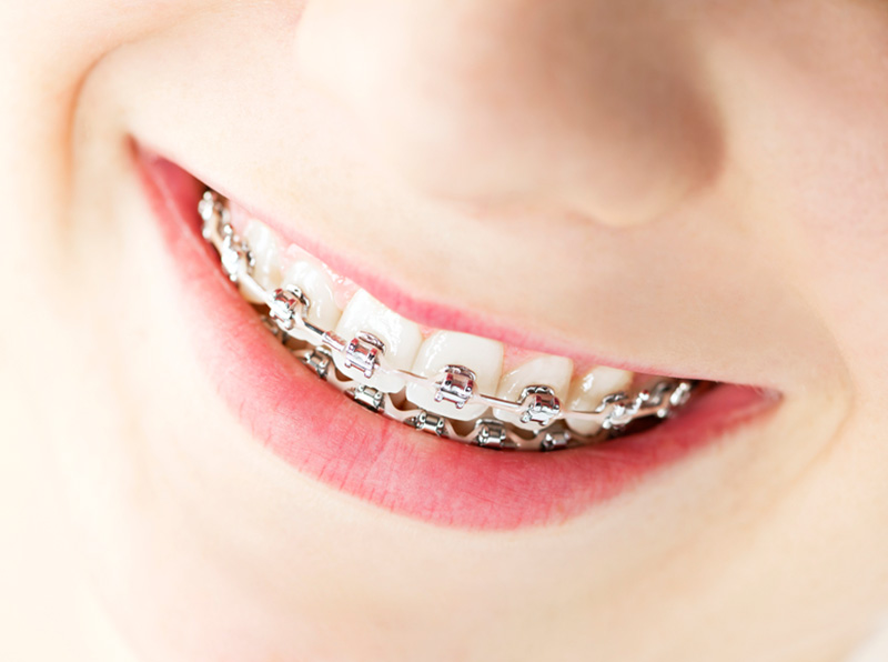 Photo of Fixed Metal Braces
